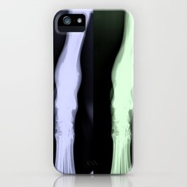 X-RAYS [Jango] iPhone Case