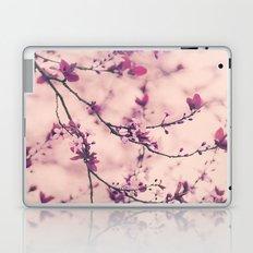 Lace Dress Laptop & iPad Skin