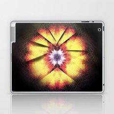 Cherub Under the Microscope: 3 Laptop & iPad Skin