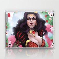 Heart Queen Laptop & iPad Skin