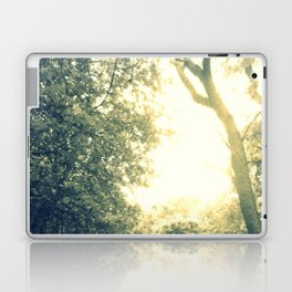 Light Coated Laptop & iPad Skin