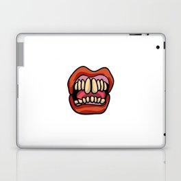 Hissy Fit Laptop & iPad Skin