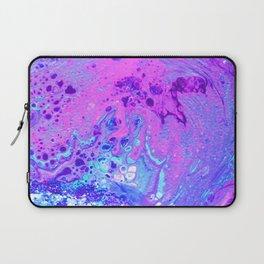 Blue Lava Laptop Sleeve