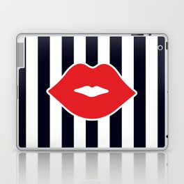 Red Lips with Stripes Laptop & iPad Skin