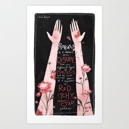 Psoriasis I Art Print