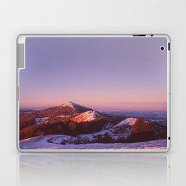Under a blue sky Laptop & iPad Skin