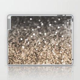 Sparkling GOLD BLACK Lady Glitter #2 #decor #art #society6 Laptop & iPad Skin