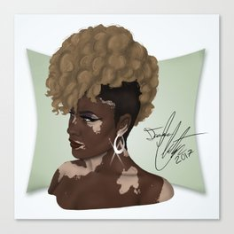 Vitiligo Beauty Canvas Print