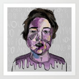 Bruised Boy Art Print