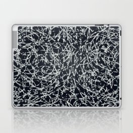 And one Laptop & iPad Skin
