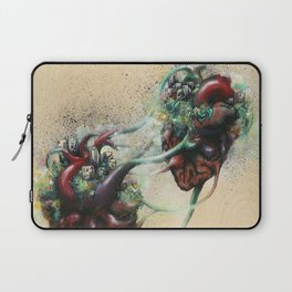 Arrested Vascular Fusion of Two Entities in Need Laptop Sleeve