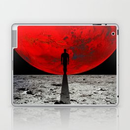 HOMESICKNESS Laptop & iPad Skin