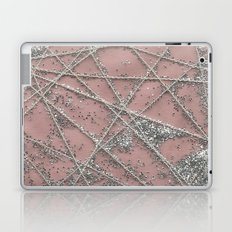Sparkle Net Pink Laptop & iPad Skin