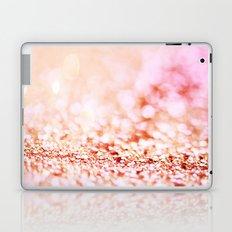 Pink shiny glitter - Sparkle Valentine Backdrop Laptop & iPad Skin