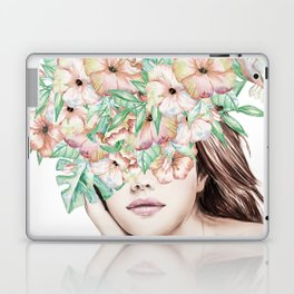 She Wore Flowers in Her Hair Island Dreams Laptop & iPad Skin