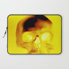 Yellow Skull Laptop Sleeve