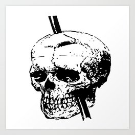 Skull of Phineas Gage With Tamping Iron Art Print