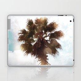 Glowing Palm Laptop & iPad Skin