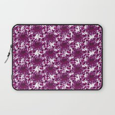 Hearts of Exploding Love Laptop Sleeve