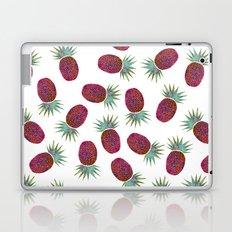 Chevron Pineapple Laptop & iPad Skin