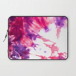 Modern Artsy Abstract Neon Pink Purple Tie Dye Laptop Sleeve