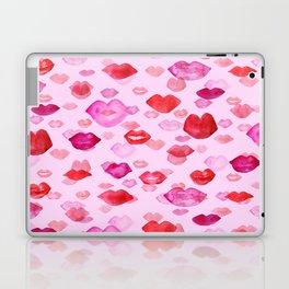 Raining kisses Laptop & iPad Skin