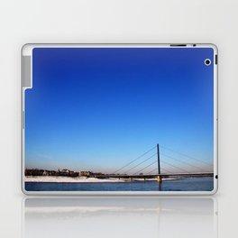 Dssldf Laptop & iPad Skin
