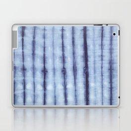 Amaya Stripe Laptop & iPad Skin
