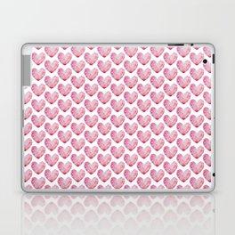 Heart No.1 Laptop & iPad Skin