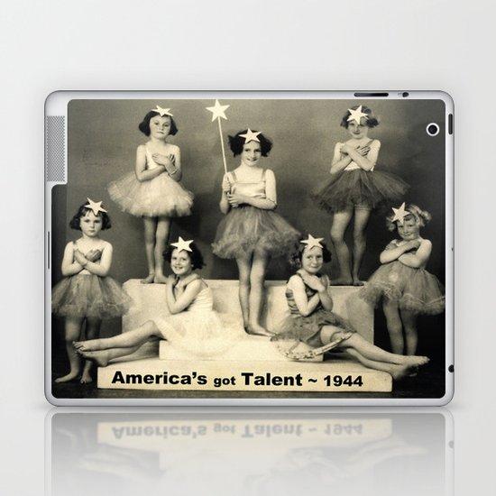 "America's got talent ~ 1944 ""The Play""  Laptop & iPad Skin"