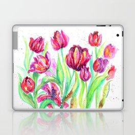 Tulips in Spring Laptop & iPad Skin