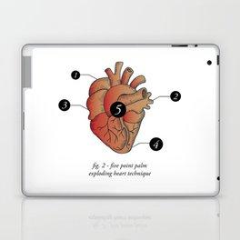 Five Point Palm Exploding Heart Technique Laptop & iPad Skin
