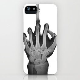 Inappropriate Middle Finger XRay Fuck You iPhone Case