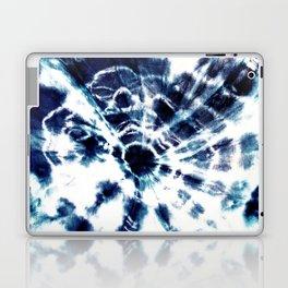 Tie Dye Sunburst Blue Laptop & iPad Skin