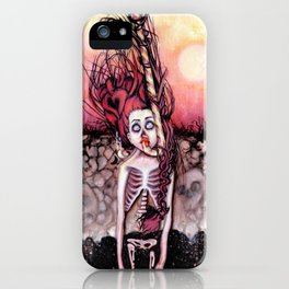 Partially Dreaming iPhone Case