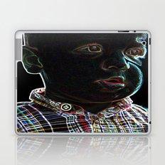 Acid Baby Laptop & iPad Skin