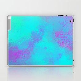 Why not Pink Laptop & iPad Skin