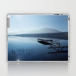 Blue Lake Laptop & iPad Skin