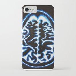 Blue Brain Scan iPhone Case