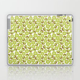 Many Kiwis Laptop & iPad Skin