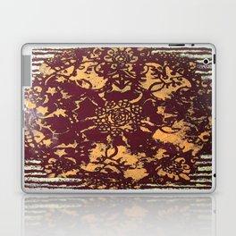 Albie Lace Laptop & iPad Skin