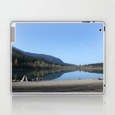 Rattle Snake Lake Laptop & iPad Skin