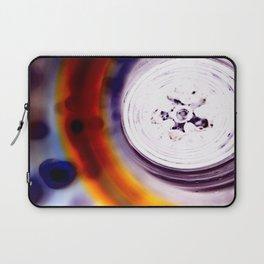 Macro_Exp Laptop Sleeve
