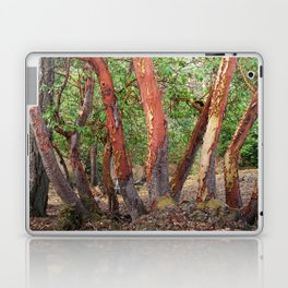 LOST IN MADRONA TREE WOODLAND Laptop & iPad Skin