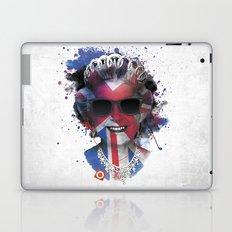 Queen Listen Music Laptop & iPad Skin