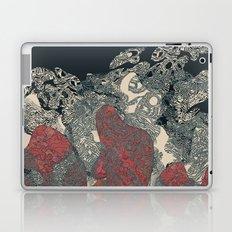 Guess what! Laptop & iPad Skin