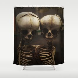 Conjoined Infant Skeletons at Museum Vrolik Shower Curtain
