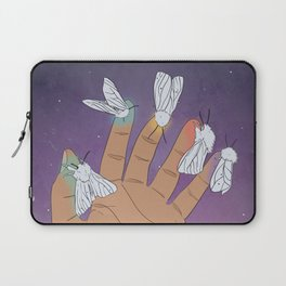 Summer Skin Laptop Sleeve
