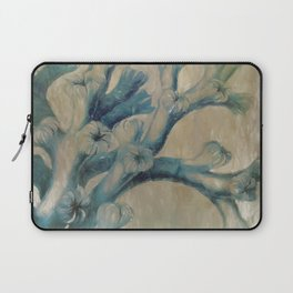 Blue Coral Laptop Sleeve