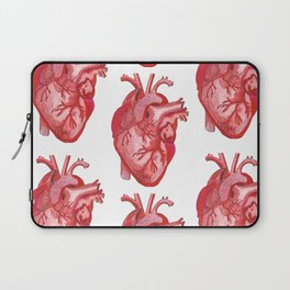 Open Heart Surgery Laptop Sleeve